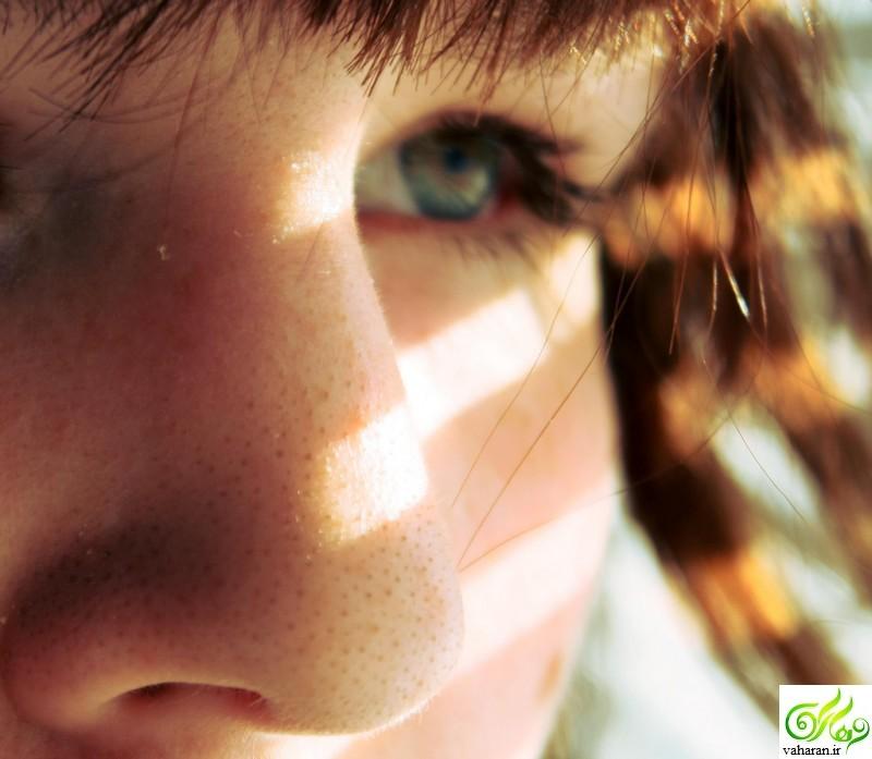 از بین بردن دانه های سرسیاه روی بینی با یک محلول معجزه آسا