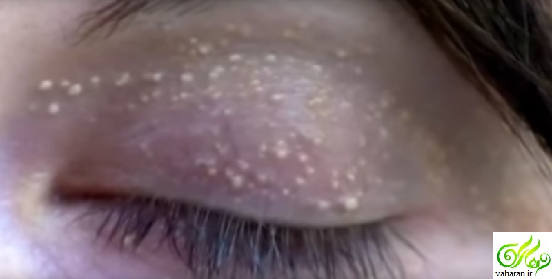 روش برطرف کردن دانه های سفید رنگ دور چشم