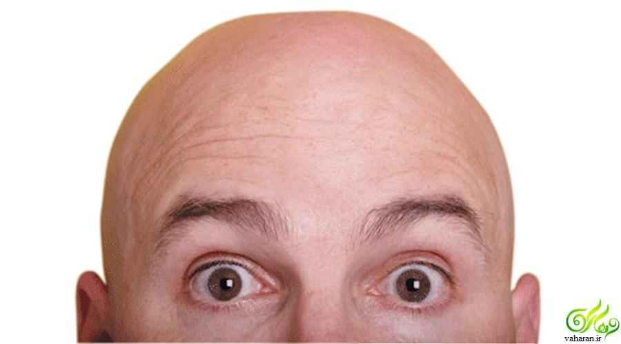 موفقیت مردان کچل : واقعیت یا شایعه؟!