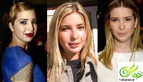 عکس های ایوانکا ترامپ قبل و بعد از عمل زیبایی